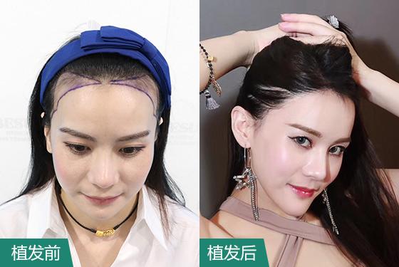 广州植发医院案例