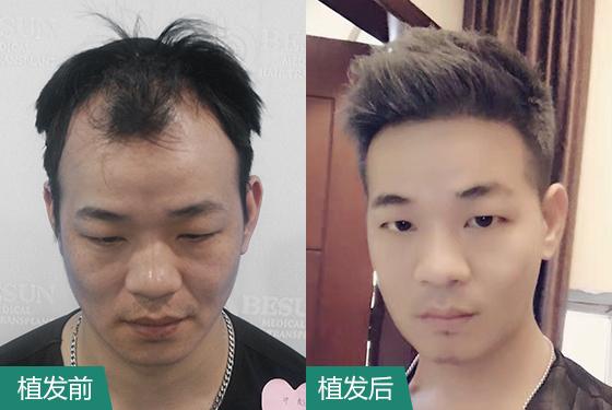 广州植发前后对照图