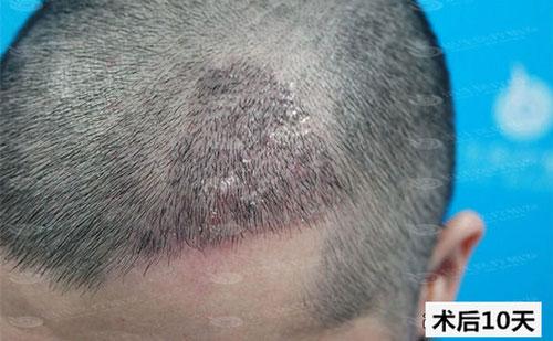 深圳倍生植发案例,M型脱发植发的真人案例