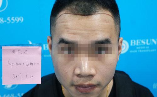 深圳倍生植发案例,26岁M脱做发际线调整