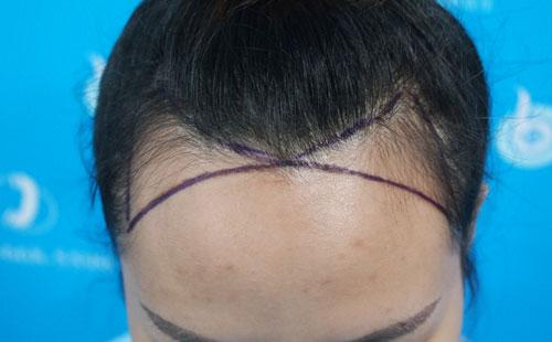 深圳倍生植发案例,女前额两边都秃了做发际线调