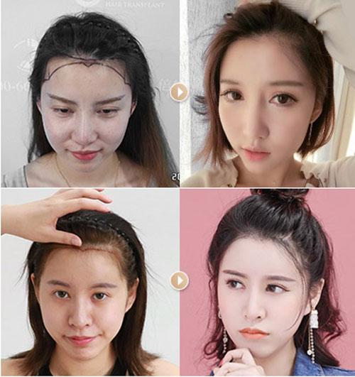 倍生植发发际线种植案例