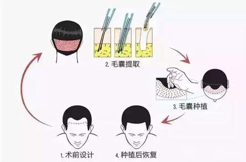 最好的毛发种植技术有哪些特点?