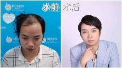 头发稀疏怎样能变得浓密