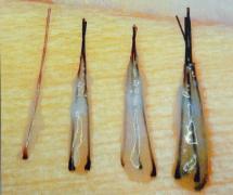 广州倍生植发医院头发种植贵不贵