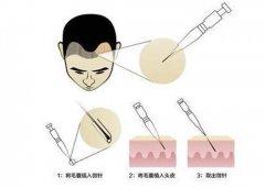 广州倍生选择SEP2.0超精微针加密种植技术是不用担心植发效果的