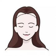 天生发际线高也是可以植发的