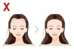 发友发际线高是可以通过植发改善的