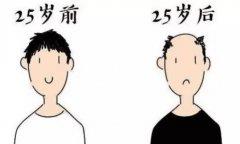 植发后的效果是很自然的