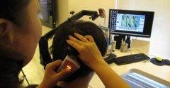毛囊检测有什么作用