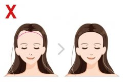 爱美的发友会通过种植发际线来修饰脸型