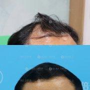 植发是采用自身的毛囊