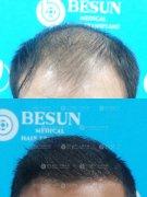 广州植发的效果是终身的