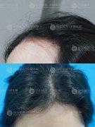发际线种植是不会留下疤痕的