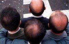 男性发友也要注意保养头发
