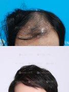 广州植发是采用自体毛囊种植