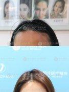 广州植发后是不会留下痕迹的