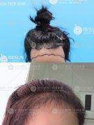 广州植发后的恢复期是比较久的