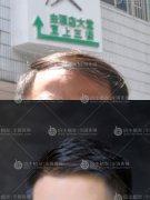 广州植发医院不全是正规的