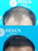 广州植发在选择植发医院时要注意