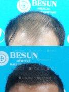广州植发选择正规植发医院植发效果会更好