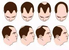 雄激素脱发并非无药可救