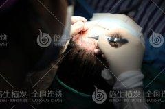 广州植发不会伤害到头皮的