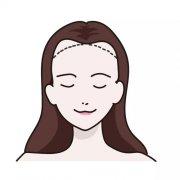 广州植发后可以使发友的颜值发生变化