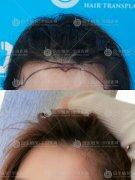 植发后保养头发很重要