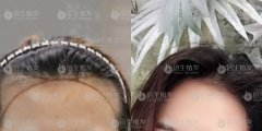 广州植发能让头发看起来更浓密