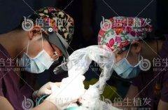 广州植发要选择正规医院