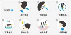广州植发的效果因人而异