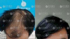 广州植发后依然要防脱养护头发