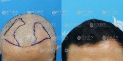 广州植发能加密头顶