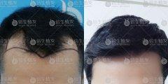 广州植发可以改变脱发患者的人生