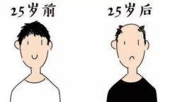 预防脱发很重要